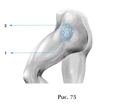 Лечение болей в тазобердренном суставе